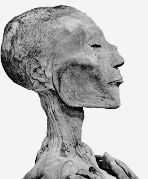 Ramses V w smallpox 1157 B.C.