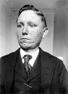 Smallpox scars