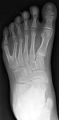 sixth toe radiograph